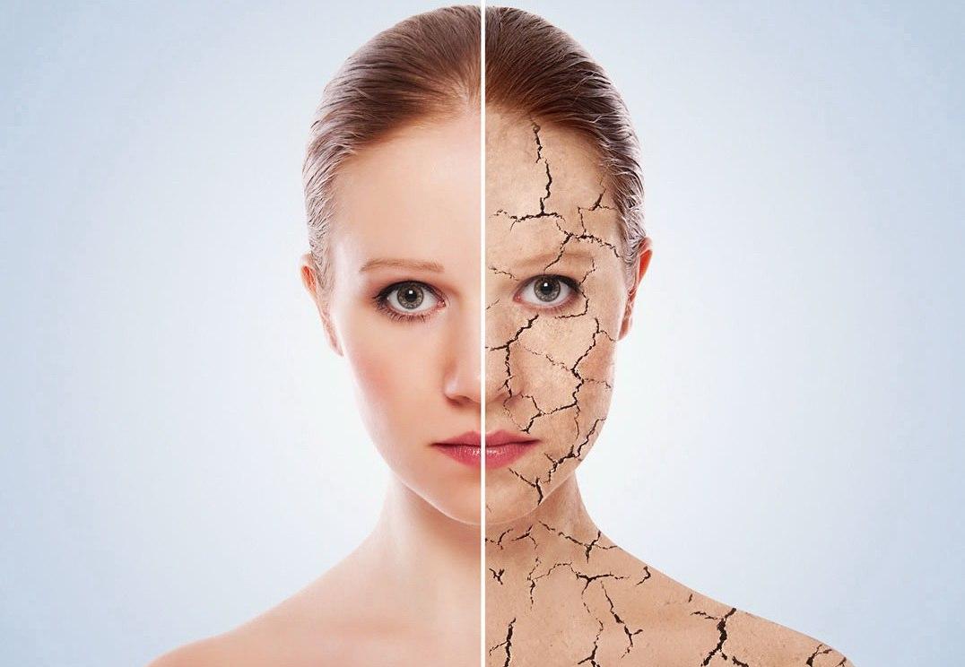Молодость и здоровье кожи в чем секрет