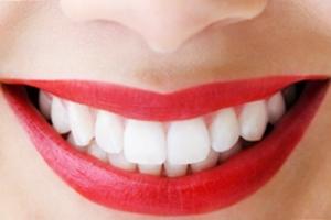 Имплантация зубов под ключ в Новосибирске