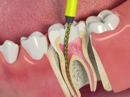 Лечение корневого кариеса и чистка каналов зуба
