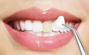 Несчастные случаи, пренебрежение, болезни — почему человек больше всего теряет зубы?
